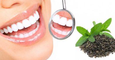 فواید شستن دندان