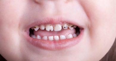 سیاه شدن دندان کودکان-پوسیدگی دندان کودکان